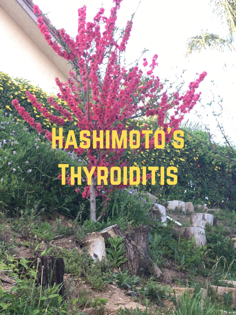 Hashimoto's Thyroiditis , myths, diagnosis, treatment